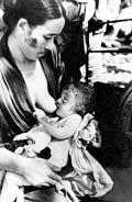 Жители Хиросимы - жертвы первой атомной бомбы